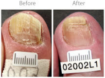 Fungus-Nail-Treatment