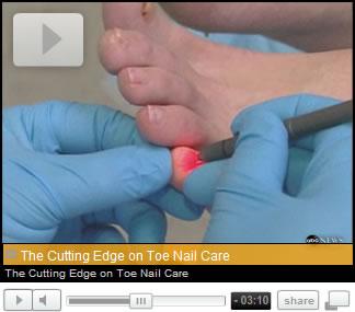 Cutting Edge Toenail Care