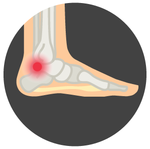Heel Pain Specialists Kingston NY Toback