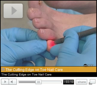 Cutting Edge Toenail Care