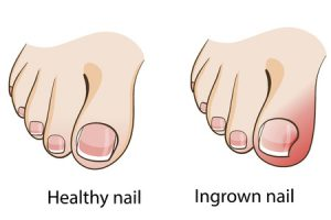 Nail Care/Ingrown, Fungus, Thickening, and Discoloration